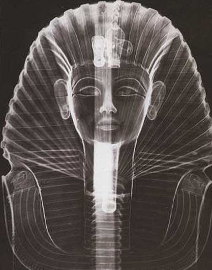 Radiographie du masque de Toutankhamon