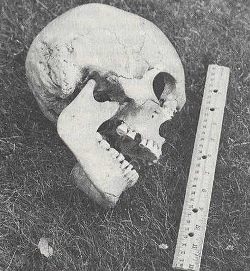 Crâne géant