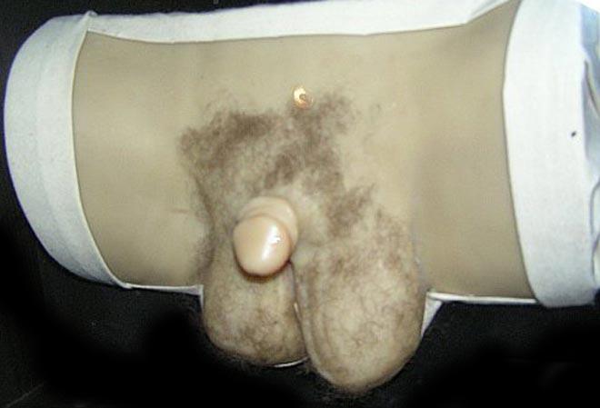 3 Сообщений. B половые органы гермафродита человека все фото.